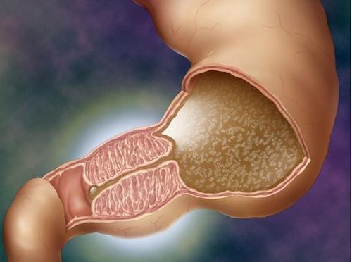 Пилоростеноз новорожденного