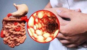 Язвенная болезнь двенадцатиперстной кишки - симптомы и лечение