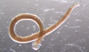 Глистная инвазия (гельминтоз): симптомы и методы избавления от паразитов