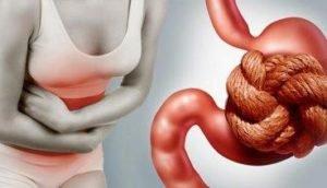 Дискинезия кишечника по гипомоторному типу симптомы лечение