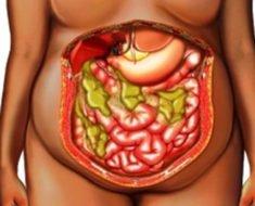 абсцесс брюшной полости
