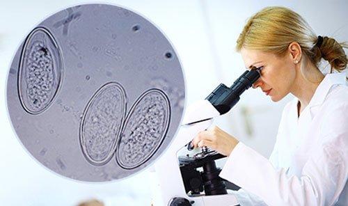 Анализ на энтеробиоз