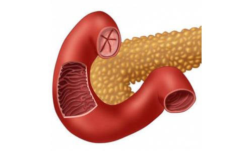 Рак фатерова сосочка: симптомы, стадии, лечение и прогноз для жизни