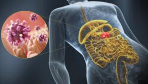 Воспаление луковицы двенадцатиперстной кишки симптомы лечение