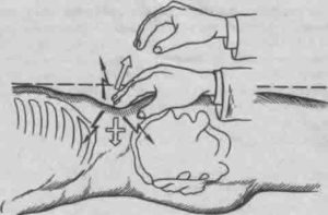 Проведение обследования на сипмтом Щеткина-Блюмберга