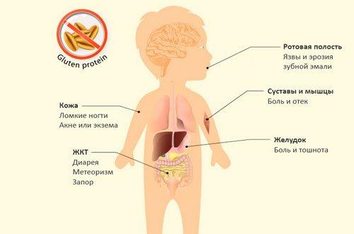Симптомы целиакии у ребенка