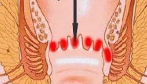 Язва кишечника: причины, симптомы и лечение
