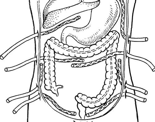 Операция при перитоните