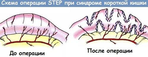 Операция при синдроме короткой кишки