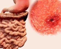 Язва кишечника