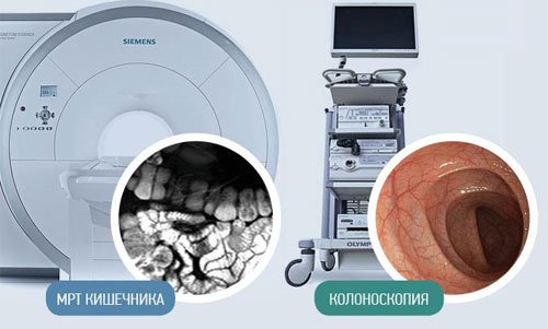МРТ кишечника и колоноскопия