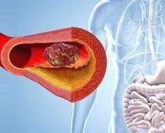 Тромбоз мезентериальных сосудов кишечника