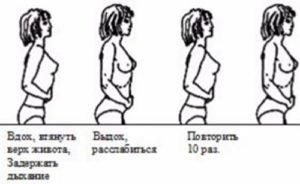 Упражнения при запорах