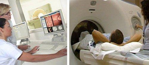 Как проводится виртуальная колоноскопия