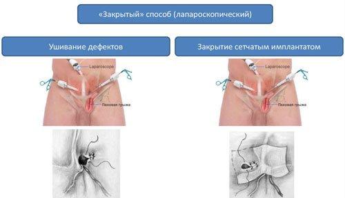 Хирургия грыж