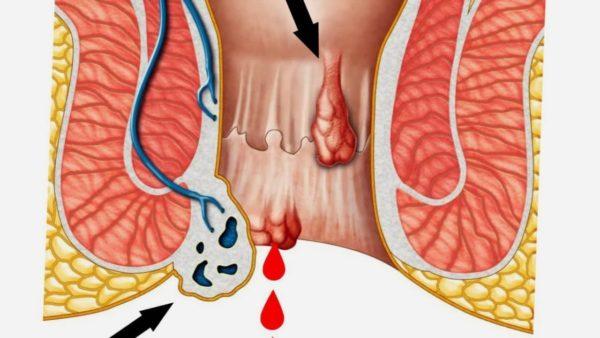Причины кровотечения при геморрое
